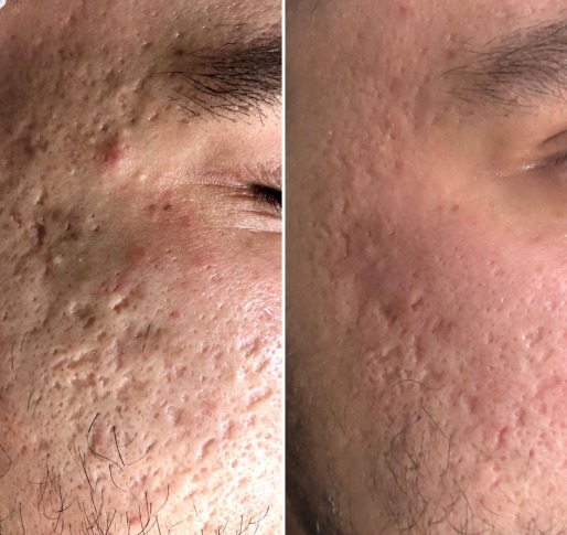 Acne Scars Removal before and after