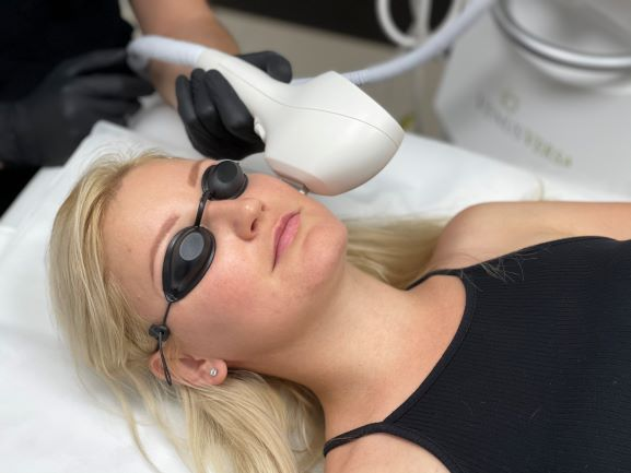 removal hair laser face IPL